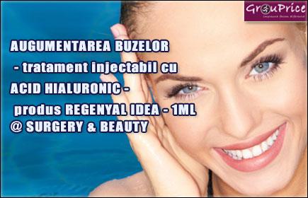 Augmentare buze cu 1 ml acid hialuronic REGENYAL IDEA LIPS @ CLINICA SURGERY AND BEAUTY