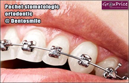 Pachet stomatologic ortodontic @ Cabinetul Stomatologic Dentosmile